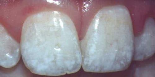 Гипоплазия зубной эмали у детей