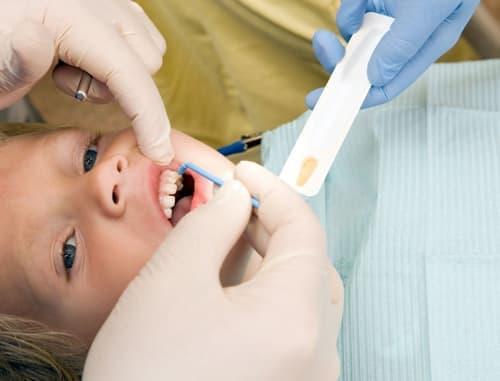 терапия зубов, реминерализующая терапия зубов, реминерализирующая терапия зубов, терапия стоматология, лазерная терапия в стоматологии, реминерализующая терапия в стоматологии, вакуум терапия в стоматологии
